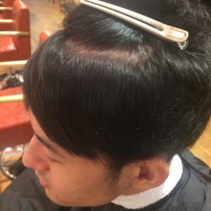 男の縮毛矯正6